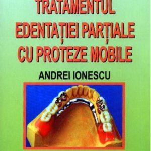 Tratamentul edentaţiei parţiale cu proteze mobile